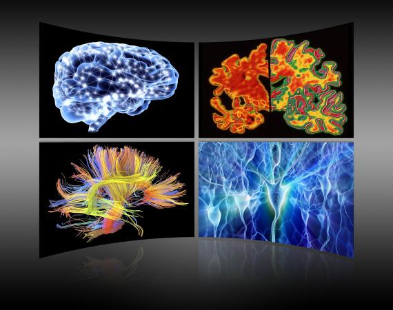 cervello e intelligenza