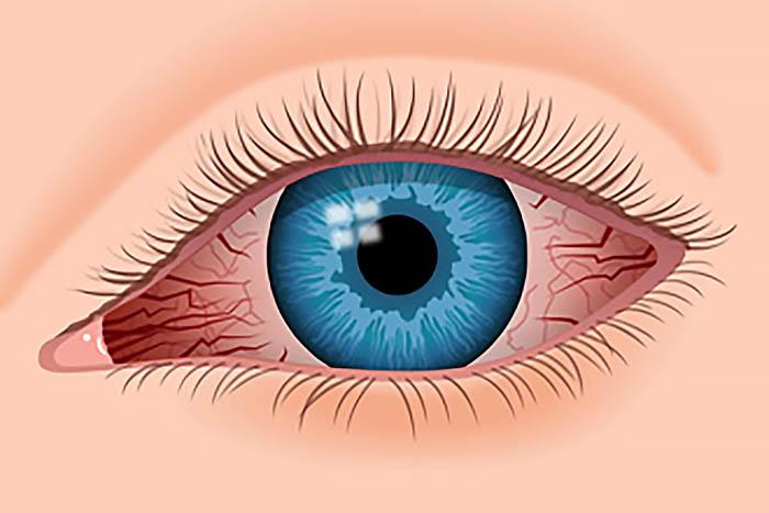 Efficacia e qualità degli occhiali anti luce blu Nowave