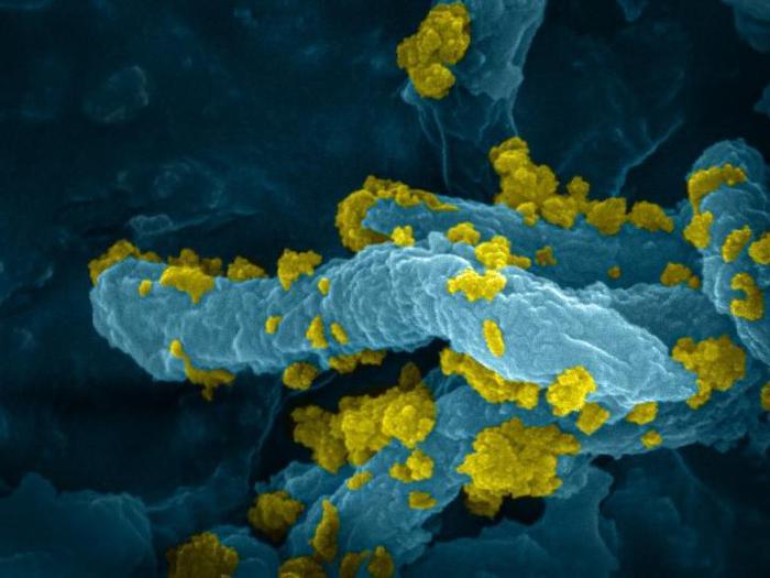 Batteri diventano 'fabbriche' di idrogeno a energia solare